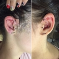 Trago piercing, forward helix, conch